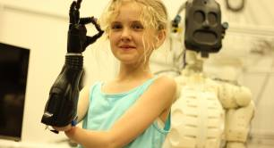 Nominet Trust child with bionic arm